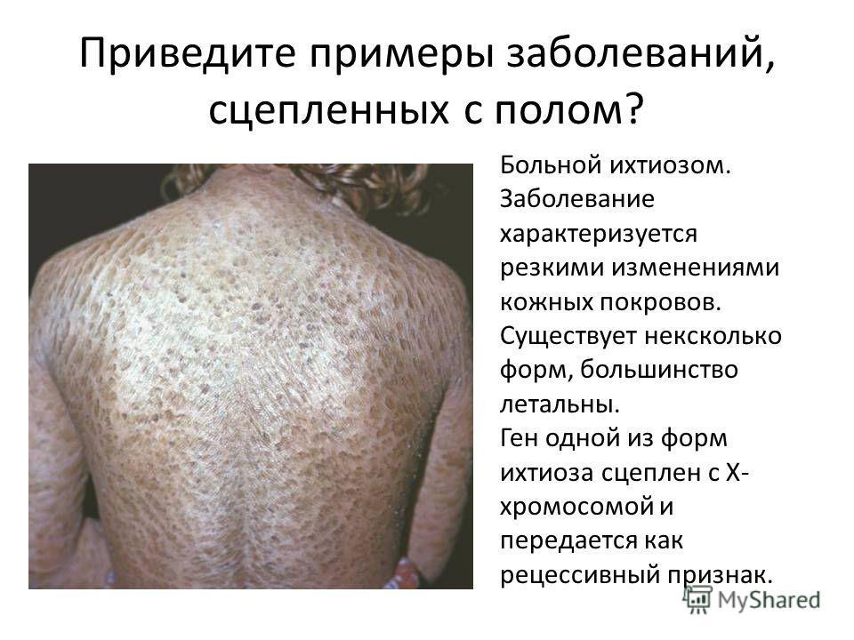 Приведите примеры заболеваний, сцепленных с полом? Больной ихтиозом. Заболевание характеризуется резкими изменениями кожных покровов. Существует нексколько форм, большинство летальны. Ген одной из форм ихтиоза сцеплен с Х- хромосомой и передается как