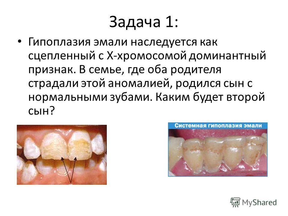 Задача 1: Гипоплазия эмали наследуется как сцепленный с Х-хромосомой доминантный признак. В семье, где оба родителя страдали этой аномалией, родился сын с нормальными зубами. Каким будет второй сын?
