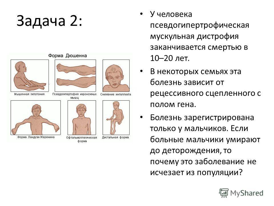 Задача 2: У человека псевдогипертрофическая мускульная дистрофия заканчивается смертью в 10–20 лет. В некоторых семьях эта болезнь зависит от рецессивного сцепленного с полом гена. Болезнь зарегистрирована только у мальчиков. Если больные мальчики ум