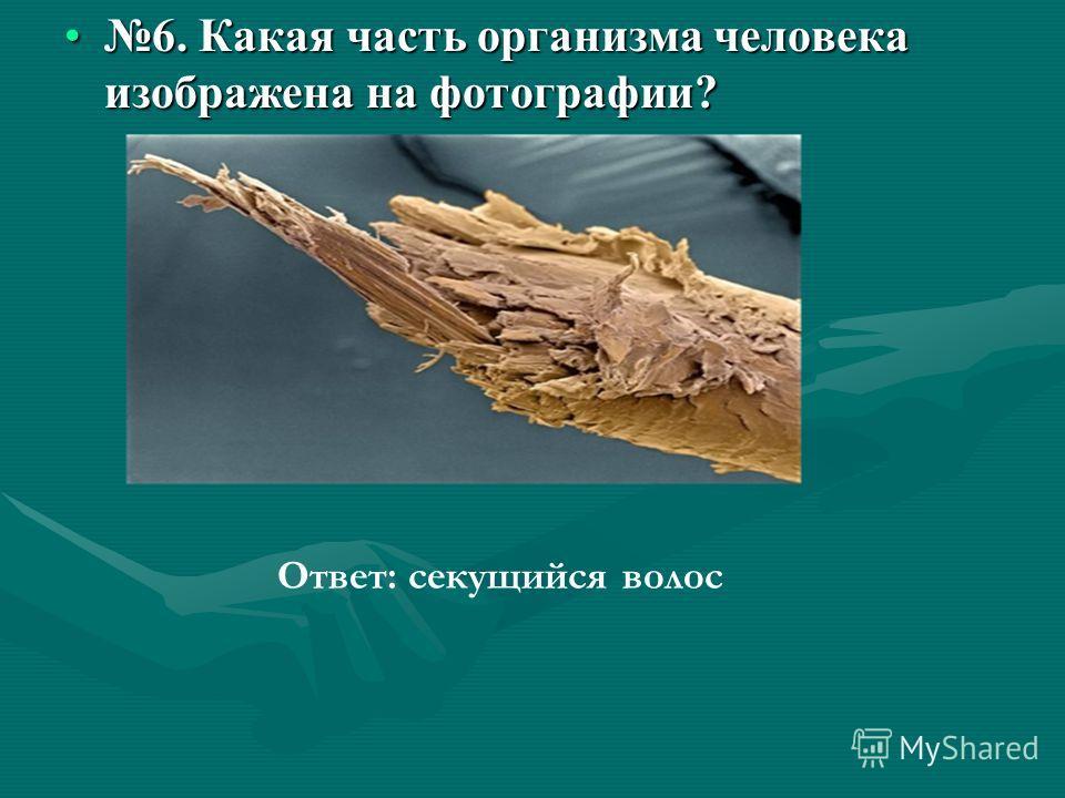 6. Какая часть организма человека изображена на фотографии?6. Какая часть организма человека изображена на фотографии? Ответ: секущийся волос