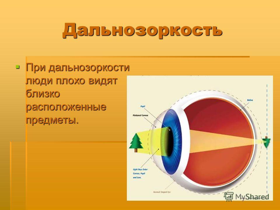 Дальнозоркость При дальнозоркости люди плохо видят близко расположенные предметы. При дальнозоркости люди плохо видят близко расположенные предметы.