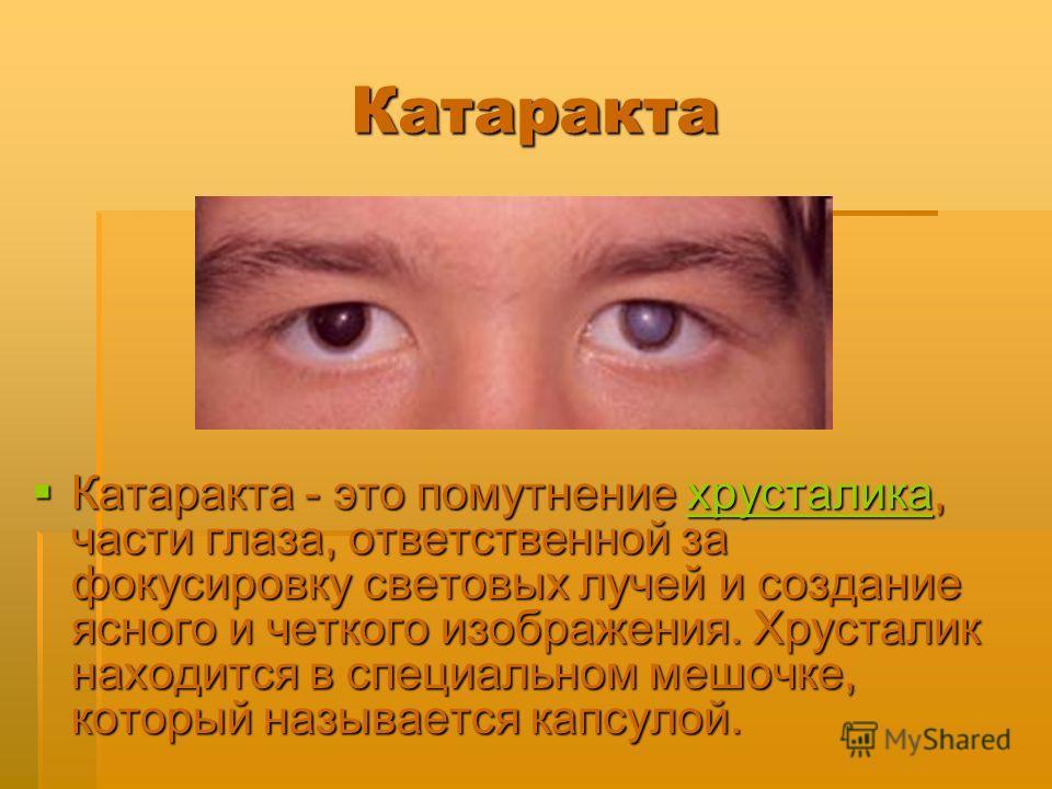 Катаракта Катаракта - это помутнение хрусталика, части глаза, ответственной за фокусировку световых лучей и создание ясного и четкого изображения. Хрусталик находится в специальном мешочке, который называется капсулой. Катаракта - это помутнение хрус