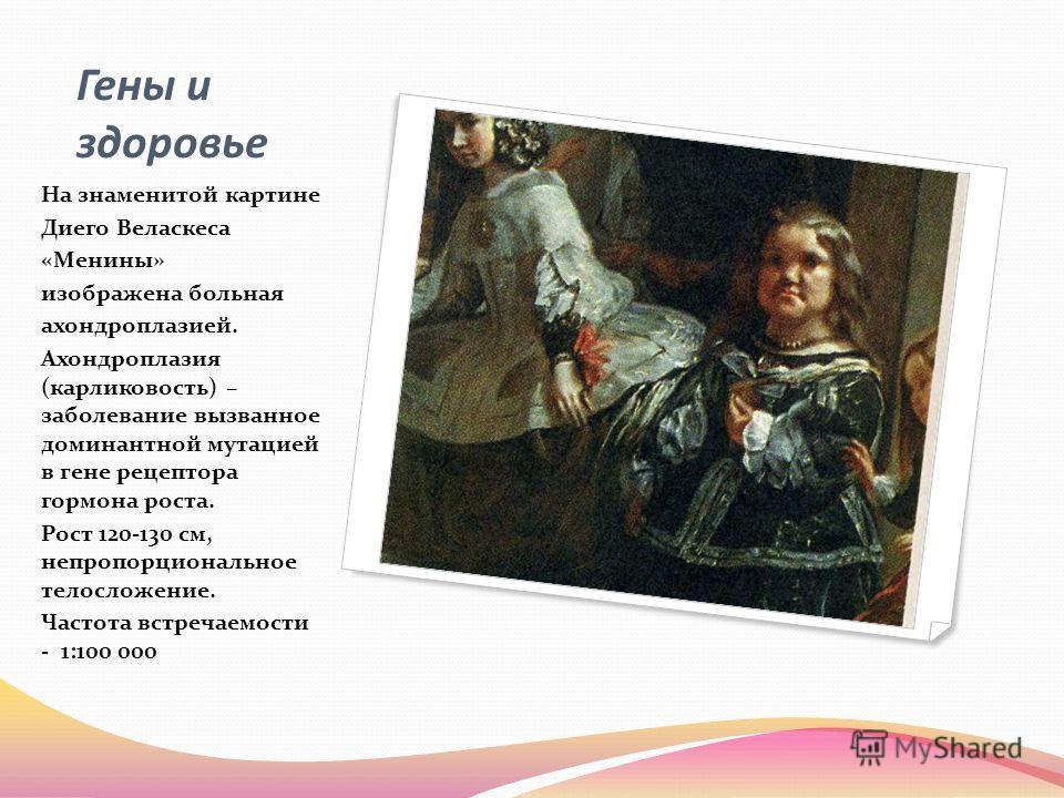 Гены и здоровье На знаменитой картине Диего Веласкеса «Менины» изображена больная ахондроплазией. Ахондроплазия (карликовость) – заболевание вызванное доминантной мутацией в гене рецептора гормона роста. Рост 120-130 см, непропорциональное телосложен