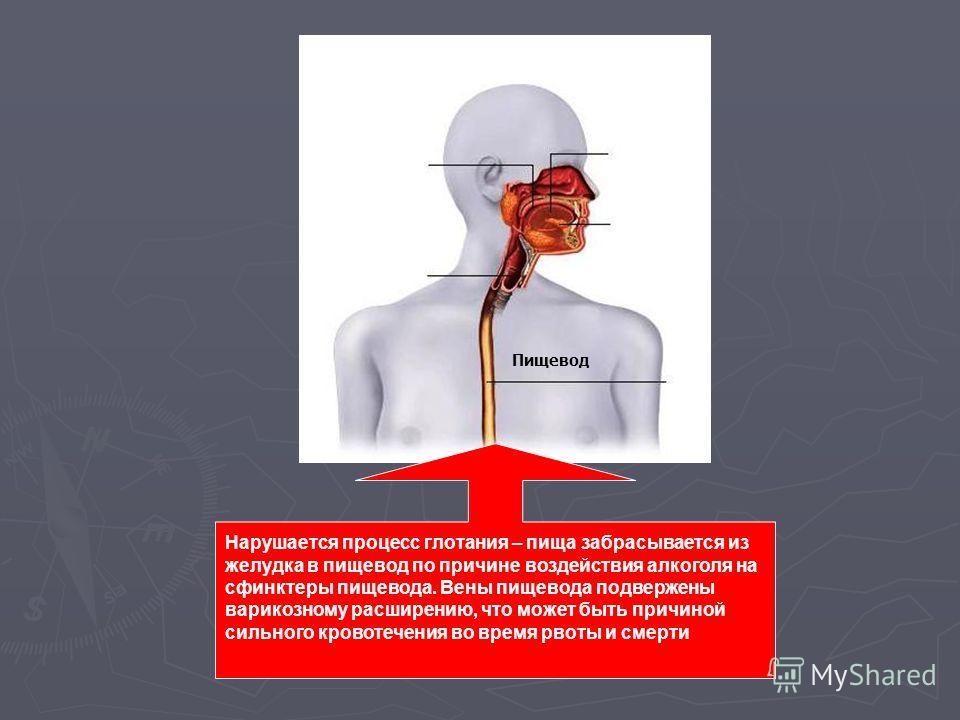 Пищевод Нарушается процесс глотания – пища забрасывается из желудка в пищевод по причине воздействия алкоголя на сфинктеры пищевода. Вены пищевода подвержены варикозному расширению, что может быть причиной сильного кровотечения во время рвоты и смерт