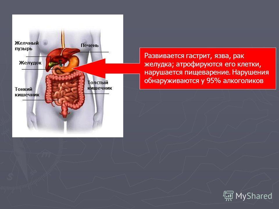 Печень Желчный пузырь Желудок Тонкий кишечник Толстый кишечник Развивается гастрит, язва, рак желудка; атрофируются его клетки, нарушается пищеварение. Нарушения обнаруживаются у 95% алкоголиков
