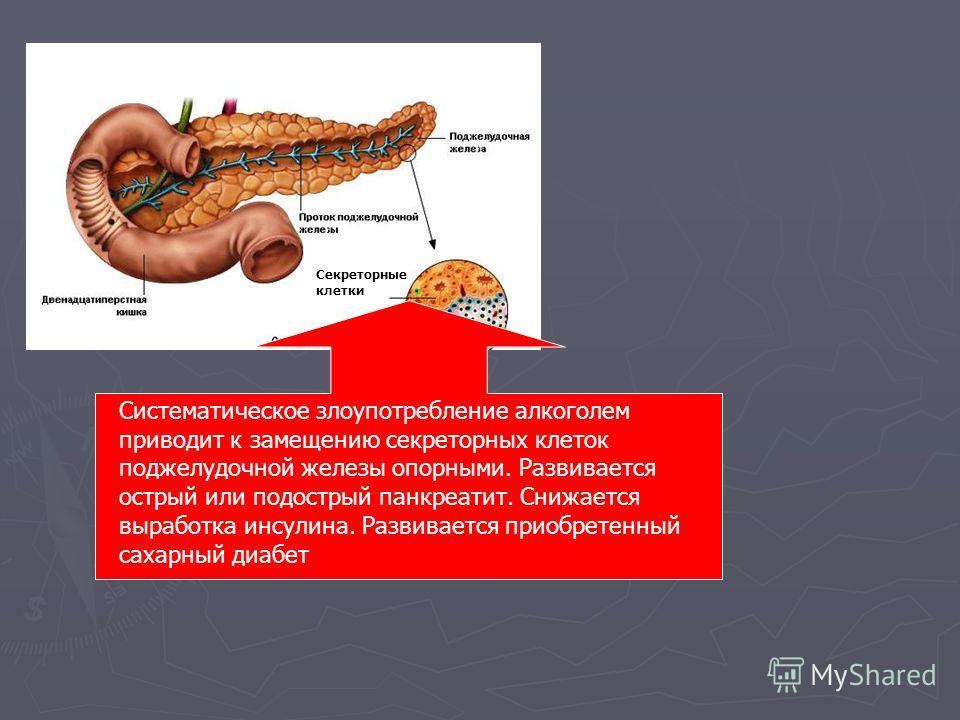 Секреторные клетки Систематическое злоупотребление алкоголем приводит к замещению секреторных клеток поджелудочной железы опорными. Развивается острый или подострый панкреатит. Снижается выработка инсулина. Развивается приобретенный сахарный диабет