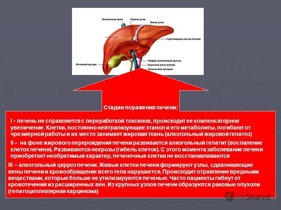 Стадии поражения печени: I - печень не справляется с переработкой токсинов, происходит ее компенсаторное увеличение. Клетки, постоянно нейтрализующие этанол и его метаболиты, погибают от чрезмерной работы и их место занимает жировая ткань (алкогольны