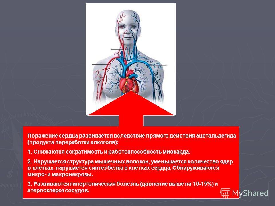 Поражение сердца развивается вследствие прямого действия ацетальдегида (продукта переработки алкоголя): 1. Снижаются сократимость и работоспособность миокарда. 2. Нарушается структура мышечных волокон, уменьшается количество ядер в клетках, нарушаетс