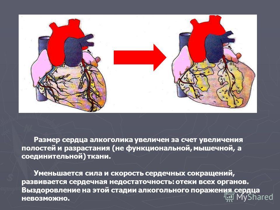 Размер сердца алкоголика увеличен за счет увеличения полостей и разрастания (не функциональной, мышечной, а соединительной) ткани. Уменьшается сила и скорость сердечных сокращений, развивается сердечная недостаточность: отеки всех органов. Выздоровле