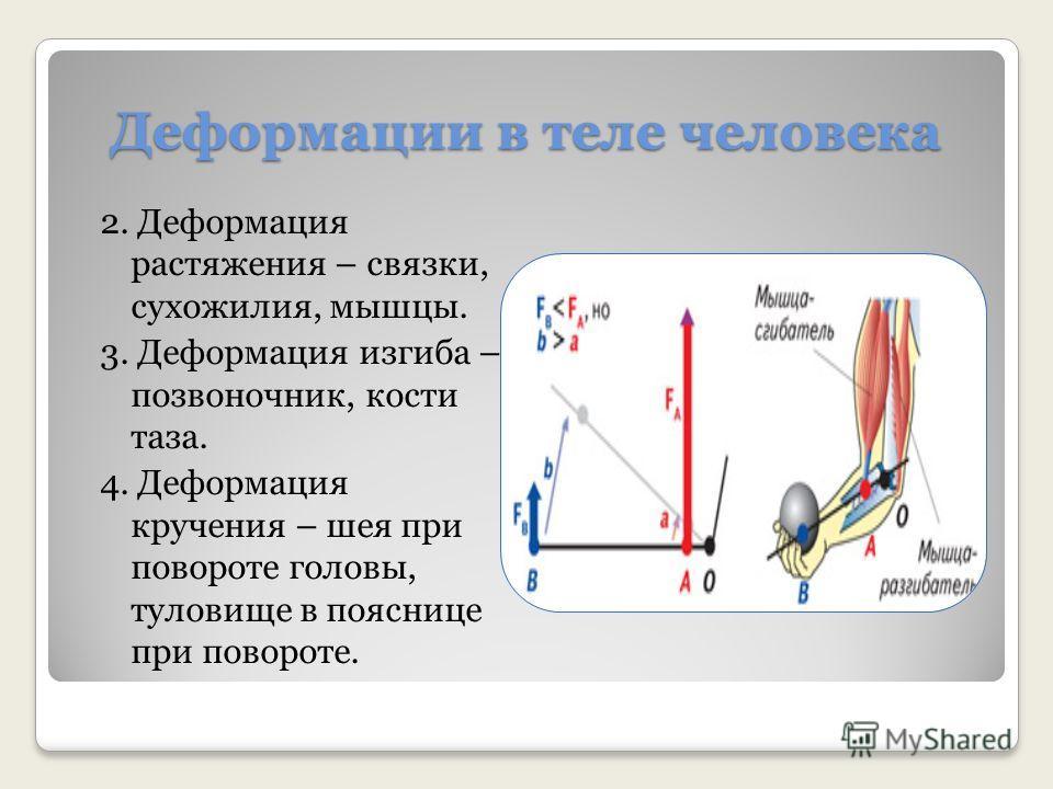 Деформации в теле человека 2. Деформация растяжения – связки, сухожилия, мышцы. 3. Деформация изгиба – позвоночник, кости таза. 4. Деформация кручения – шея при повороте головы, туловище в пояснице при повороте.
