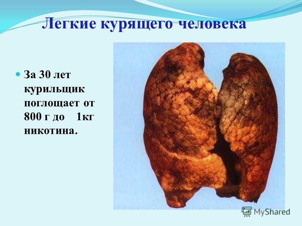 Легкие курящего человека За 30 лет курильщик поглощает от 800 г до 1кг никотина.