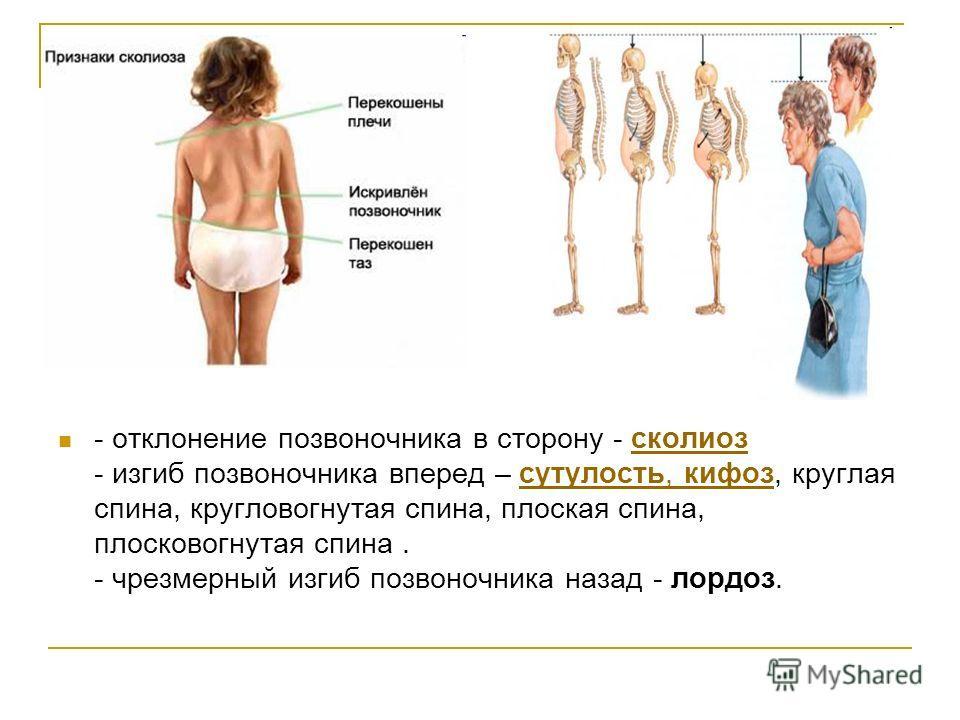 - отклонение позвоночника в сторону - сколиоз - изгиб позвоночника вперед – сутулость, кифоз, круглая спина, кругловогнутая спина, плоская спина, плосковогнутая спина. - чрезмерный изгиб позвоночника назад - лордоз.сколиозсутулость, кифоз