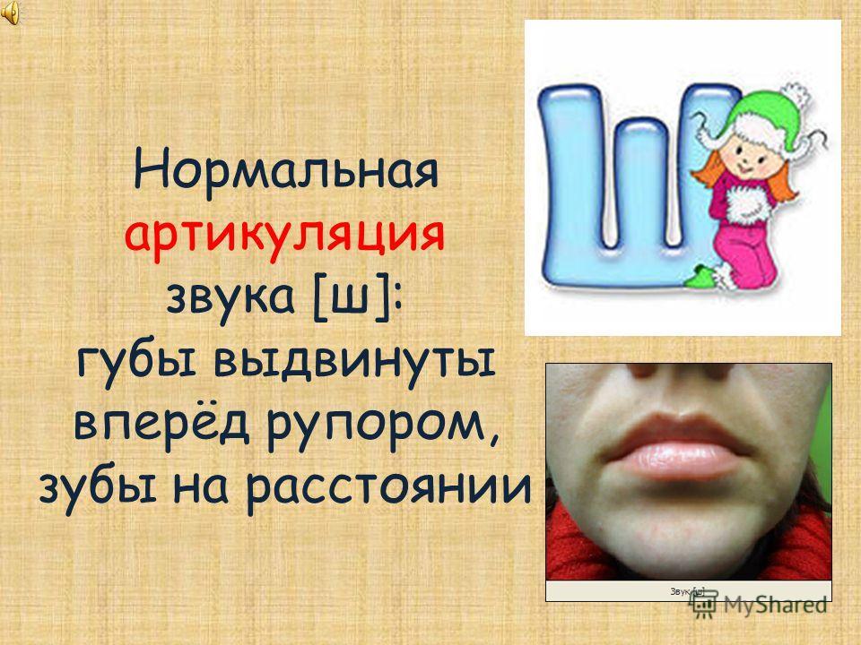 Нормальная артикуляция звука [ш]: губы выдвинуты вперёд рупором, зубы на расстоянии