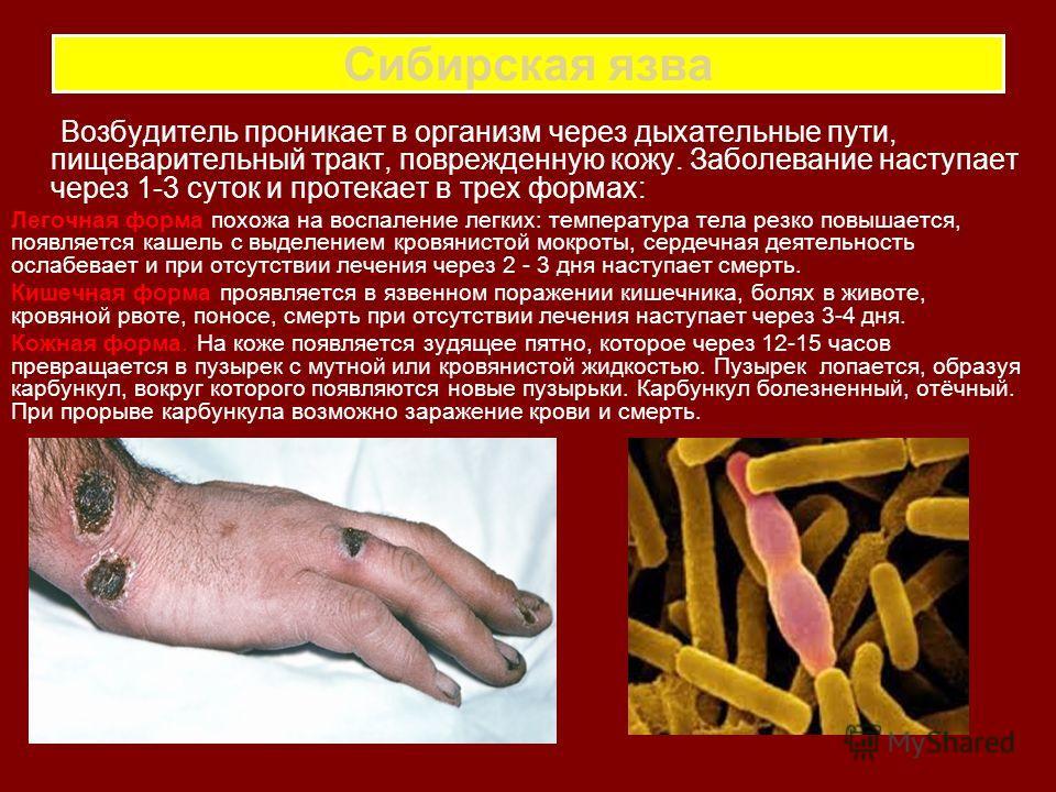 Сибирская язва Возбудитель проникает в организм через дыхательные пути, пищеварительный тракт, поврежденную кожу. Заболевание наступает через 1-3 суток и протекает в трех формах: Легочная форма похожа на воспаление легких: температура тела резко повы