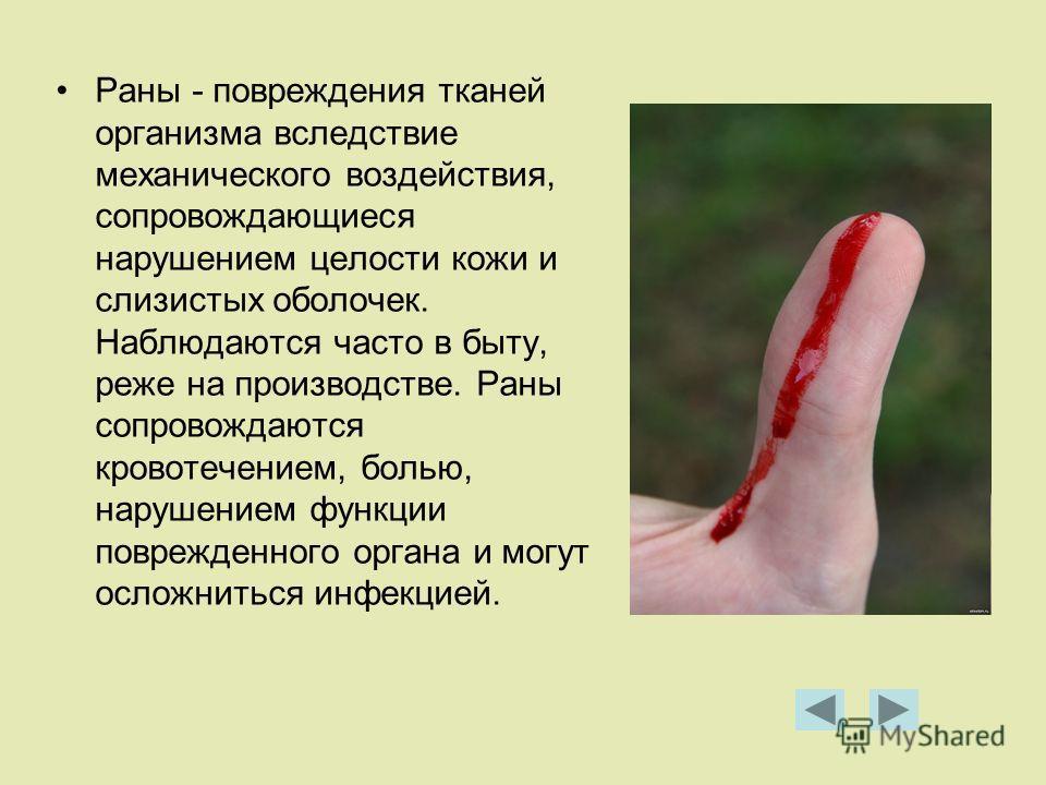 Раны - повреждения тканей организма вследствие механического воздействия, сопровождающиеся нарушением целости кожи и слизистых оболочек. Наблюдаются часто в быту, реже на производстве. Раны сопровождаются кровотечением, болью, нарушением функции повр