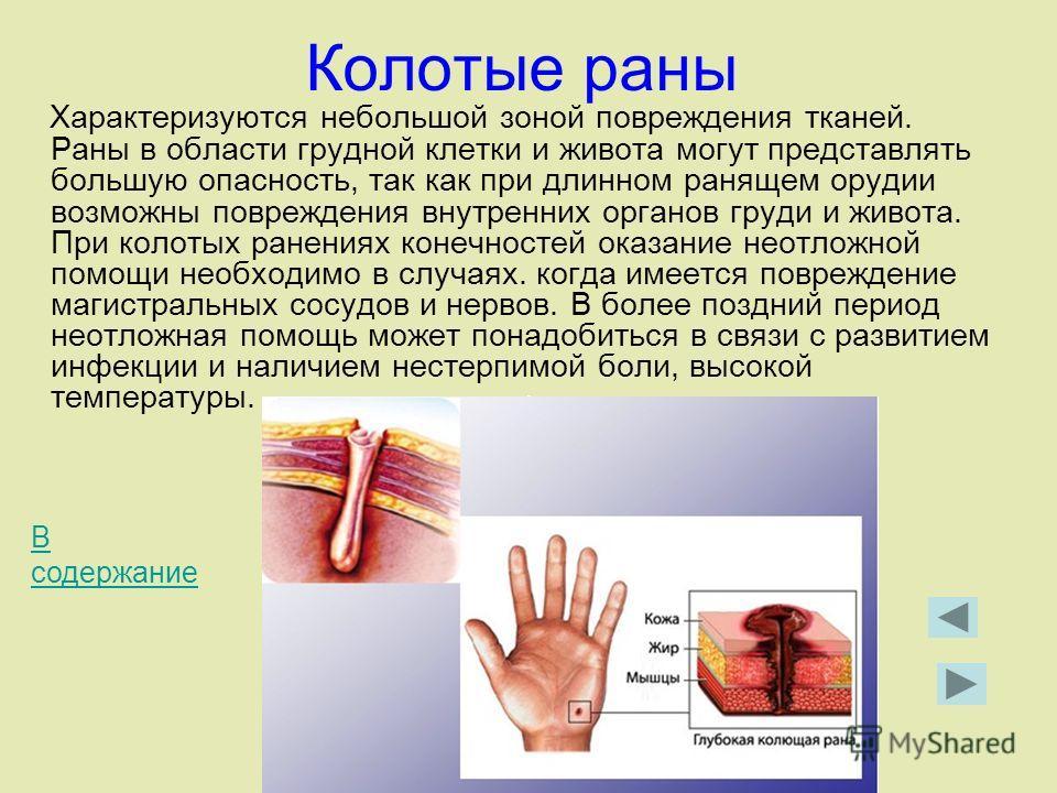 Колотые раны Характеризуются небольшой зоной повреждения тканей. Раны в области грудной клетки и живота могут представлять большую опасность, так как при длинном ранящем орудии возможны повреждения внутренних органов груди и живота. При колотых ранен