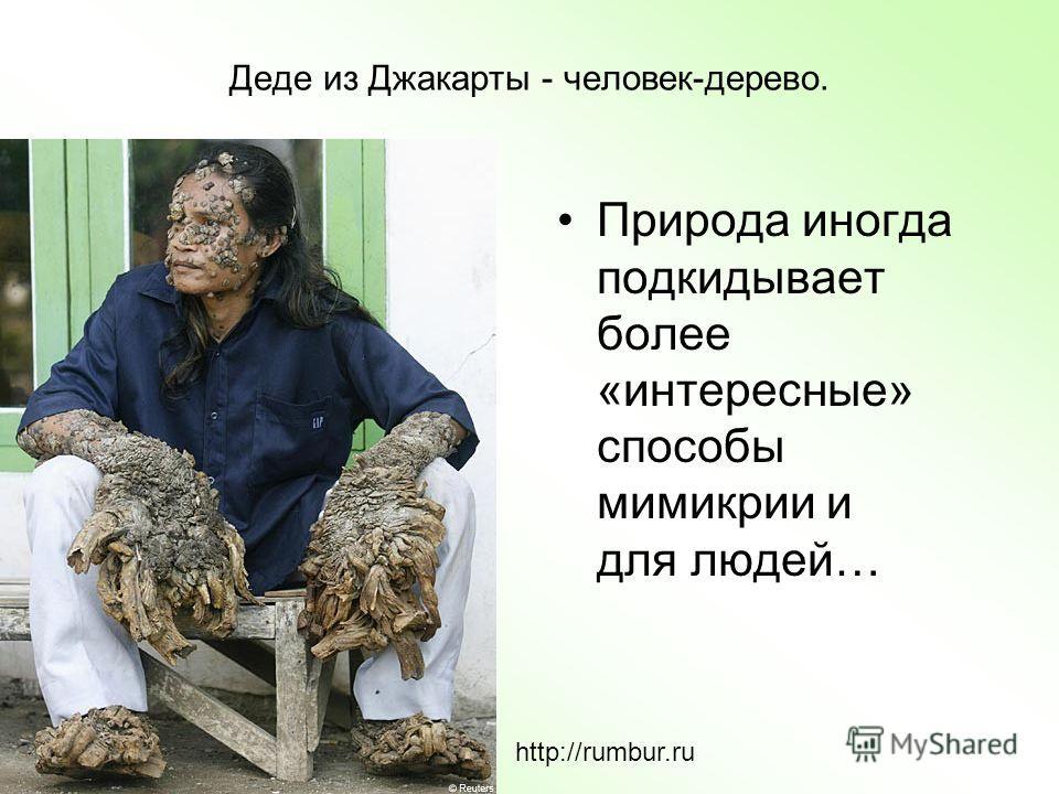 Деде из Джакарты - человек-дерево. Природа иногда подкидывает более «интересные» способы мимикрии и для людей… http://rumbur.ru