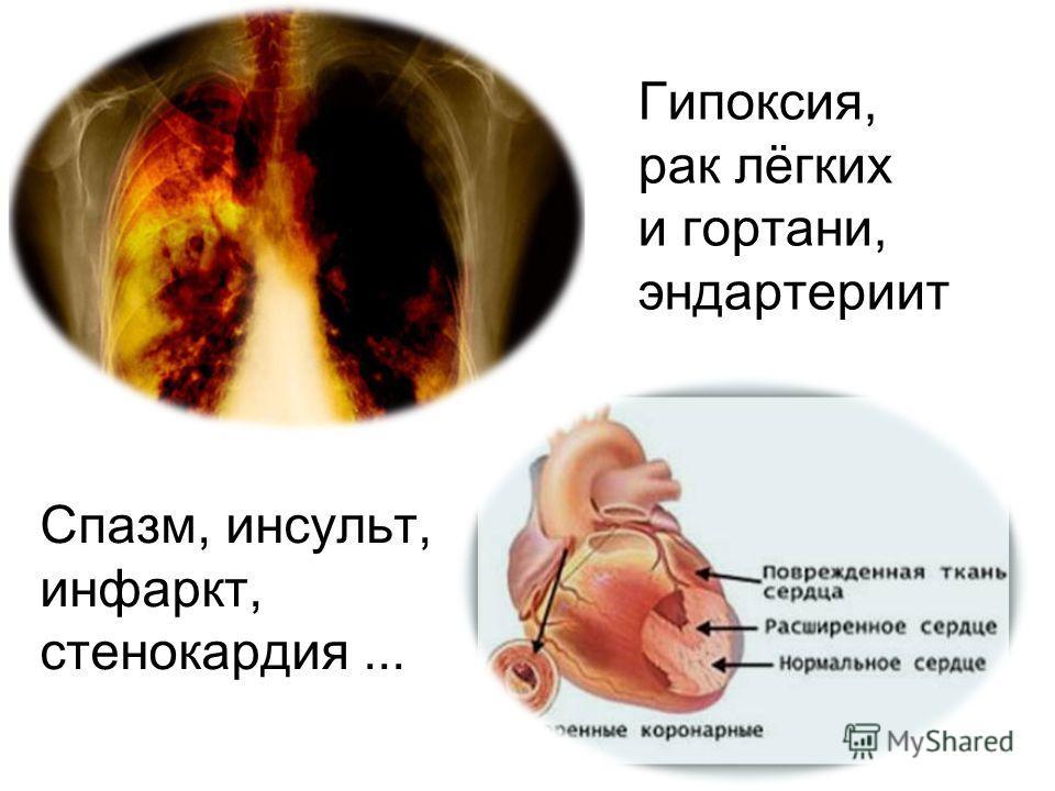 Спазм, инсульт, инфаркт, стенокардия... Гипоксия, рак лёгких и гортани, эндартериит