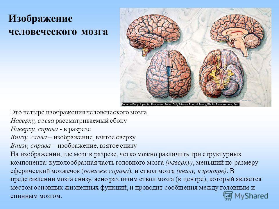 Это четыре изображения человеческого мозга. Наверху, слева рассматриваемый сбоку Наверху, справа - в разрезе Внизу, слева – изображение, взятое сверху Внизу, справа – изображение, взятое снизу На изображении, где мозг в разрезе, четко можно различить