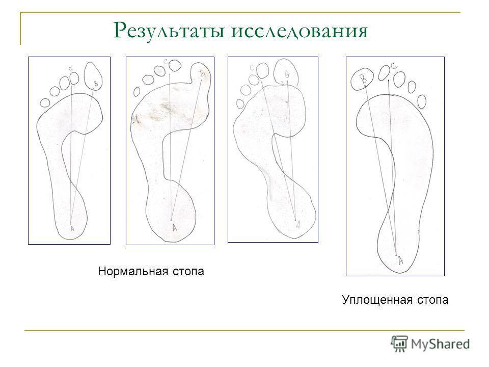 Результаты исследования Нормальная стопа Уплощенная стопа