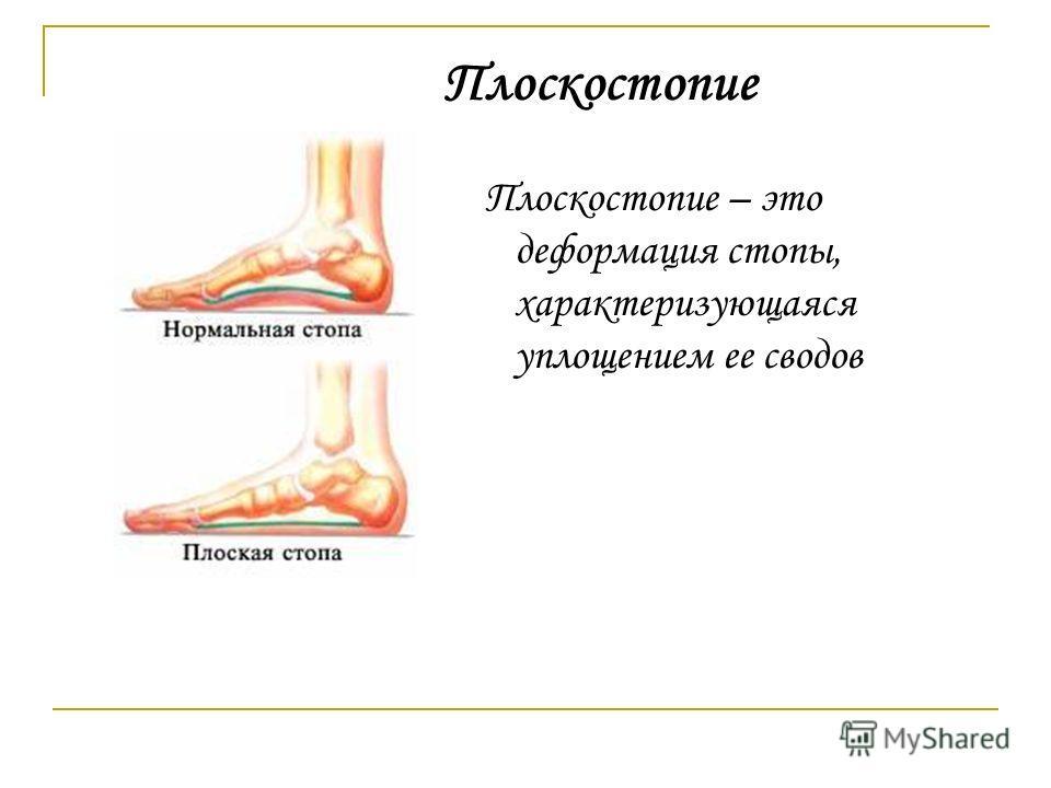 Плоскостопие – это деформация стопы, характеризующаяся уплощением ее сводов Плоскостопие