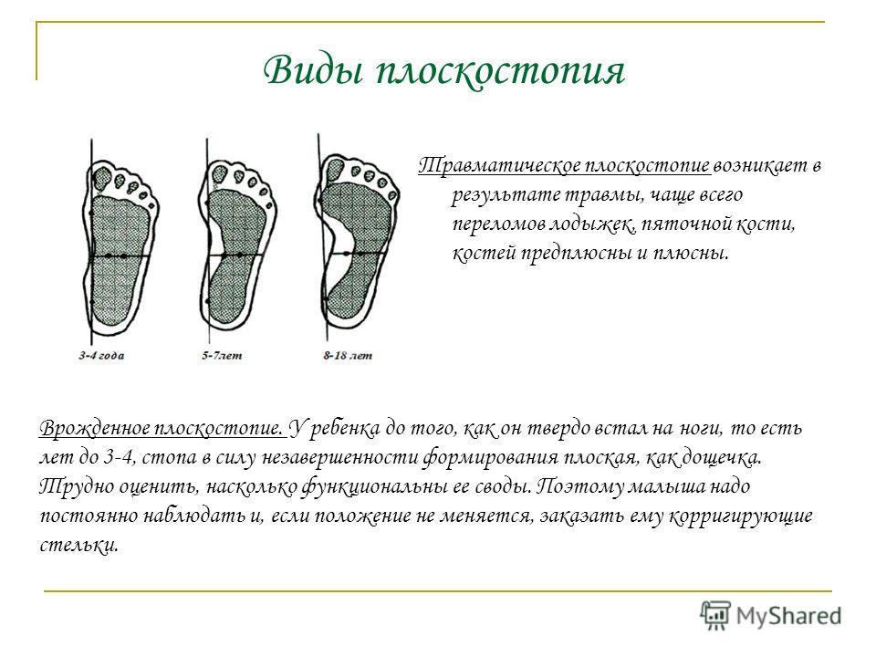 Травматическое плоскостопие возникает в результате травмы, чаще всего переломов лодыжек, пяточной кости, костей предплюсны и плюсны. Врожденное плоскостопие. У ребенка до того, как он твердо встал на ноги, то есть лет до 3-4, стопа в силу незавершенн