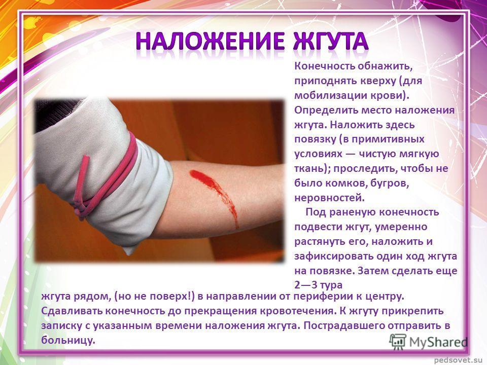 Конечность обнажить, приподнять кверху (для мобилизации крови). Определить место наложения жгута. Наложить здесь повязку (в примитивных условиях чистую мягкую ткань); проследить, чтобы не было комков, бугров, неровностей. Под раненую конечность подве