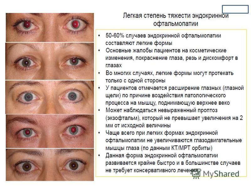 ботокс при эндокринной офтальмопатии Как ухаживать, теряет
