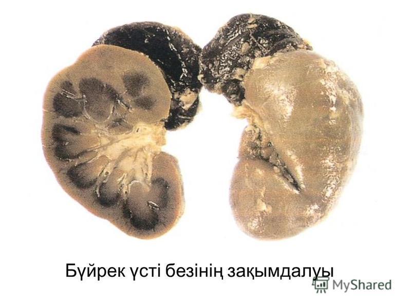 Бүйрек үсті безінің зақымдалуы