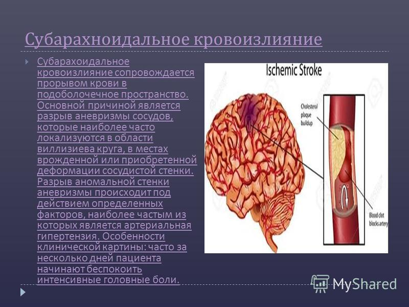 Viagra Induced Anuerysm