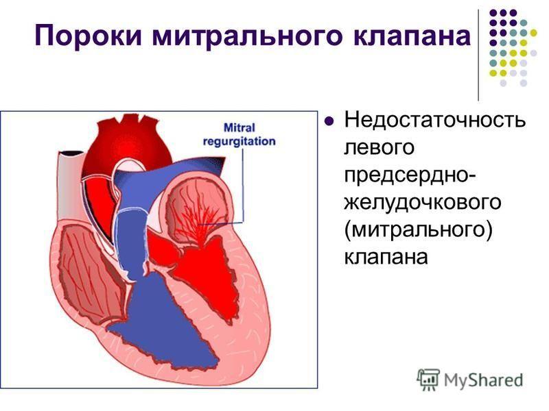 Заболевания сердца пролапс митрального клапана