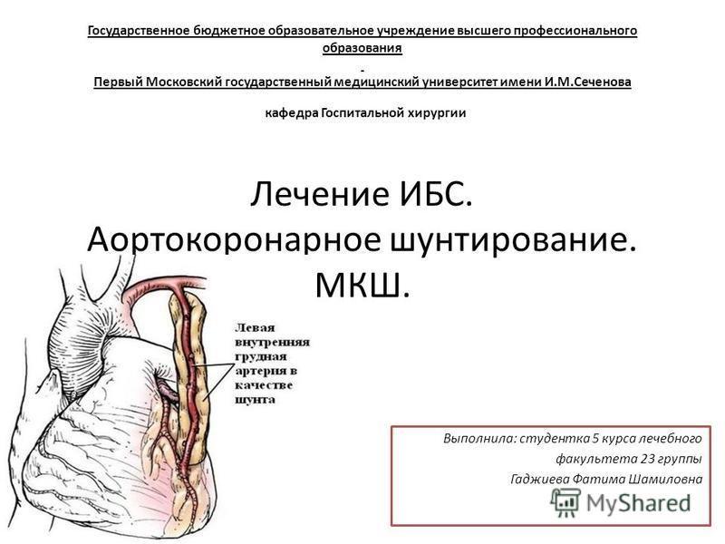 Хирургическое лечение ишемической болезни сердца реферат 8005
