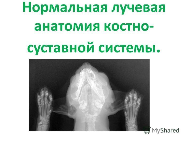 Рентгенологическое исследование костно-суставной системы периартрит плечевого сустава что это