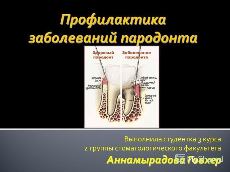 Выполнила студентка 3 курса 2 группы стоматологического факультета Аннамырадова Говхер