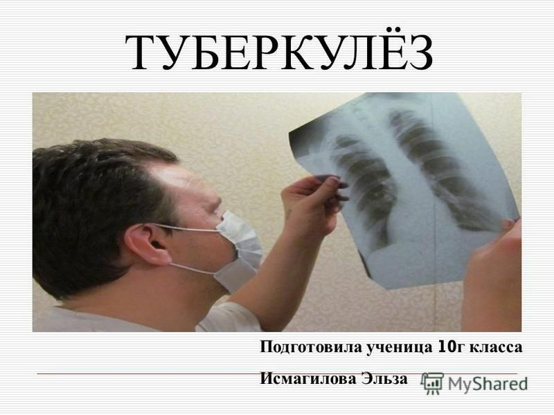 ТУБЕРКУЛЁЗ Подготовила ученица 10 г класса Исмагилова Эльза