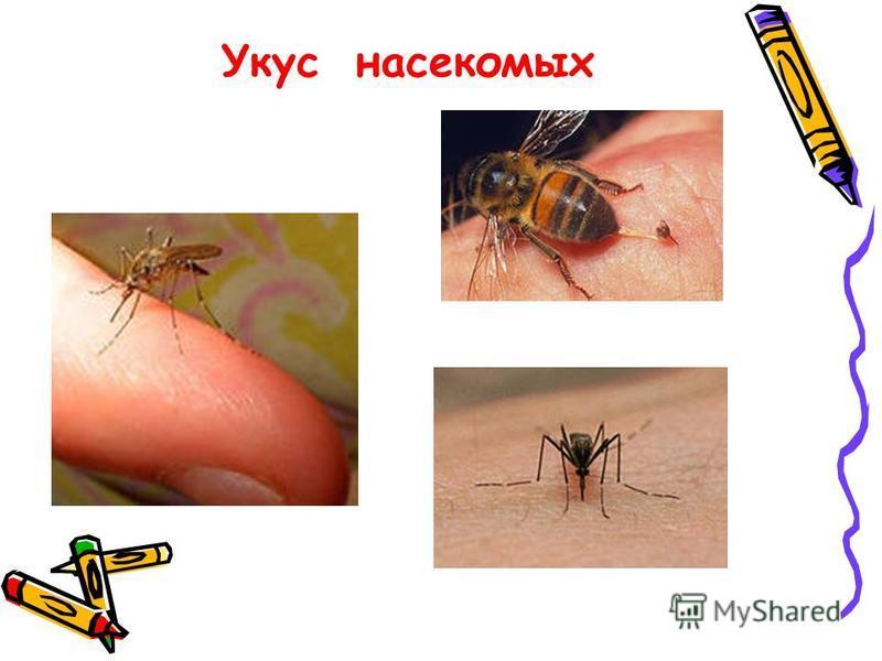 Укус насекомых