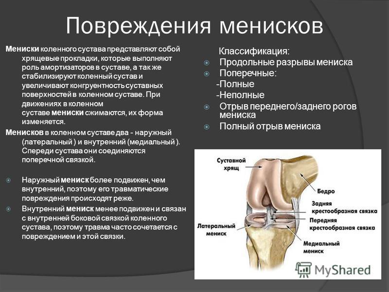 Лфк при повреждениях мениска коленного сустава купить тазобедренный сустав цена