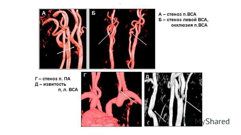 стеноз левой позвоночной артерии 50