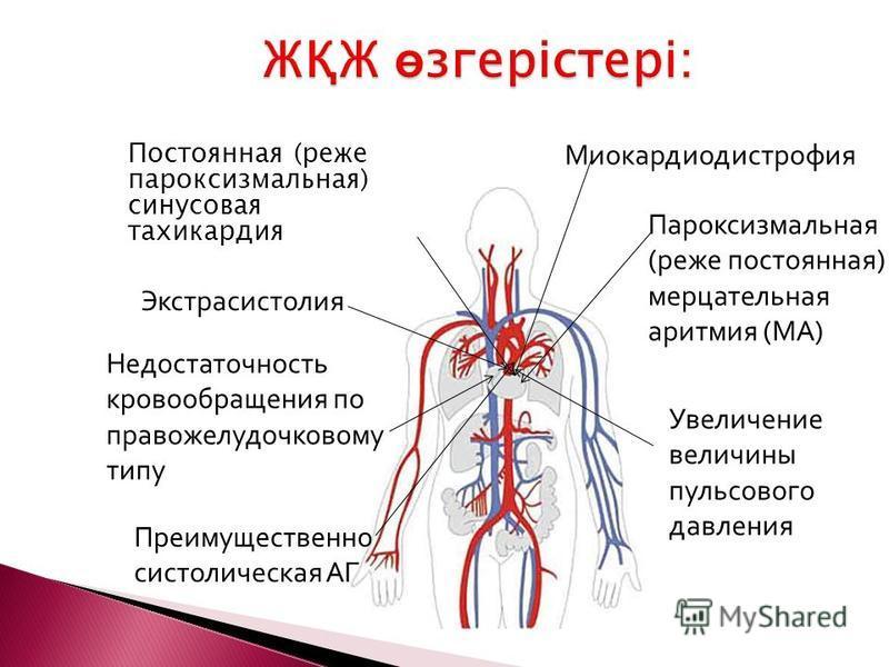 Постоянная (реже пароксизмальная) синусовая тахикардия Экстрасистолия Пароксизмальная (реже постоянная) мерцательная аритмия (МА) Увеличение величины пульсового давления Преимущественно систолическая АГ Миокардиодистрофия Недостаточность кровообращен