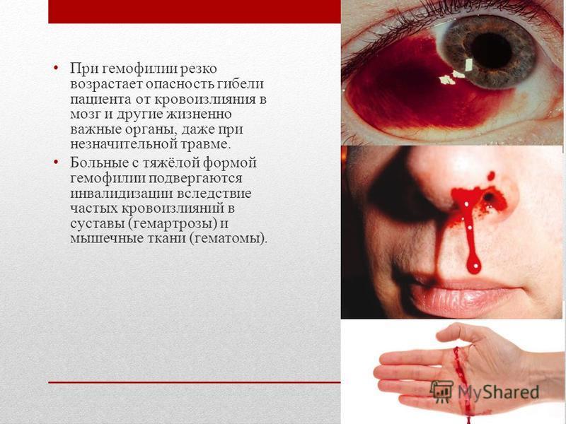 При гемофилии резко возрастает опасность гибели пациента от кровоизлияния в мозг и другие жизненно важные органы, даже при незначительной травме. Больные с тяжёлой формой гемофилии подвергаются инвалидизации вследствие частых кровоизлияний в суставы