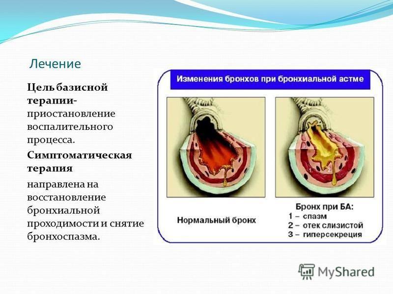 Лечение Цель базисной терапии- приостановление воспалительного процесса. Симптоматическая терапия направлена на восстановление бронхиальной проходимости и снятие бронхоспазма.