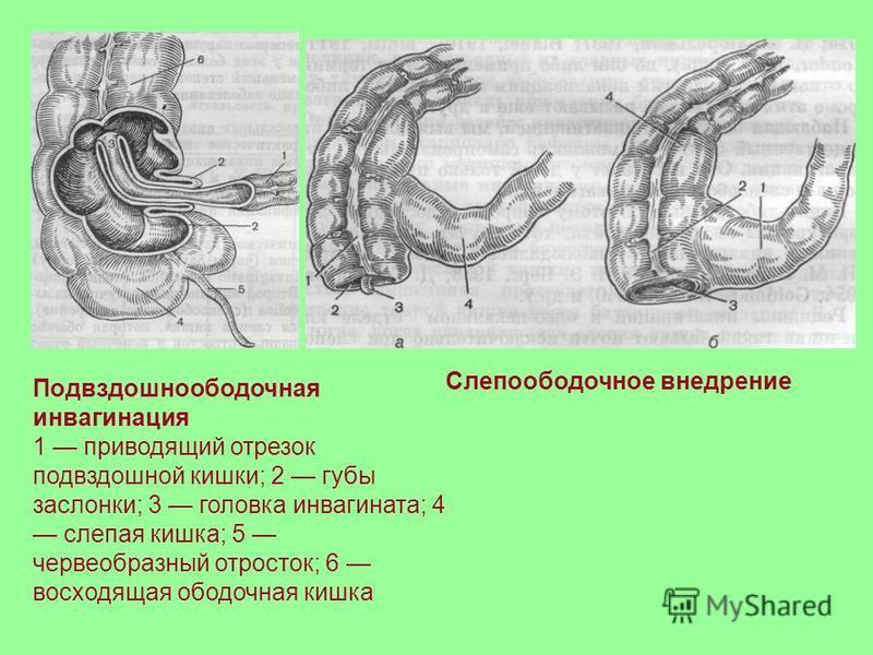 ostraya-invaginatsiya-kishechnika
