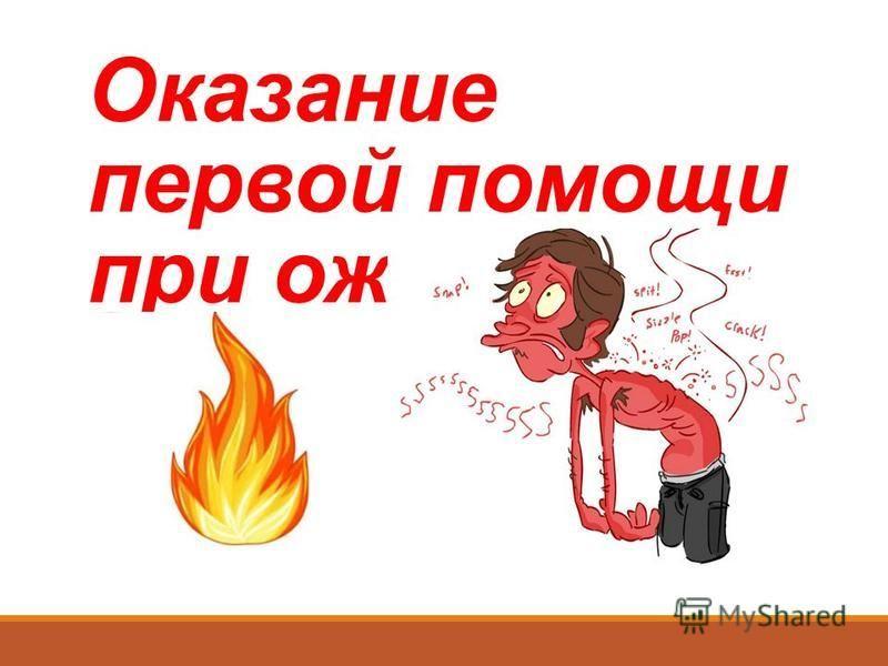 Оказание первой помощи при ожогах