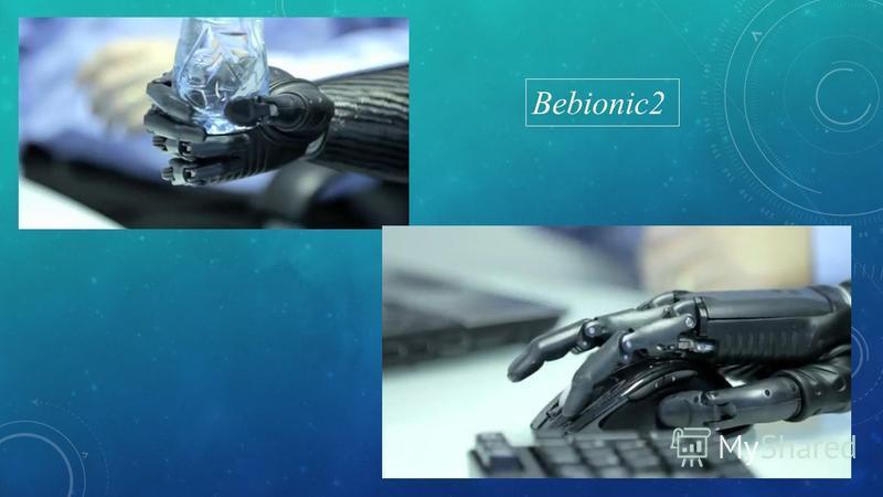 Bebionic2
