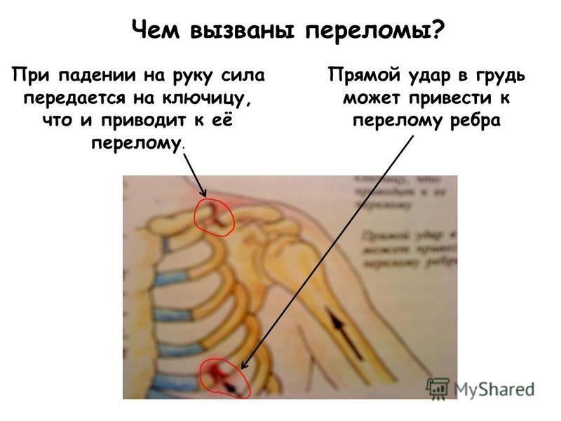 Чем вызваны переломы? При падении на руку сила передается на ключицу, что и приводит к её перелому. Прямой удар в грудь может привести к перелому ребра