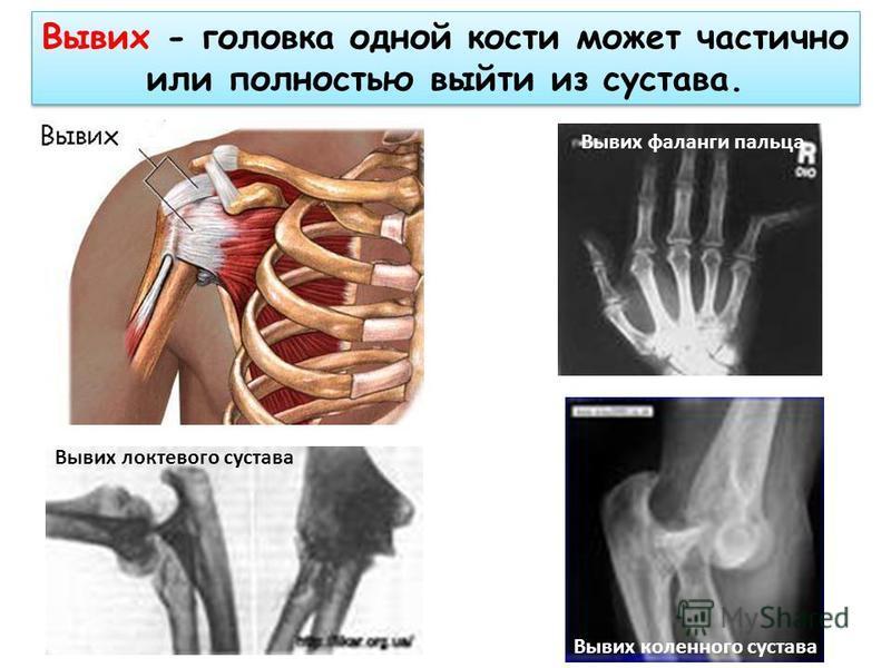 Вывих - головка одной кости может частично или полностью выйти из сустава. Вывих локтевого сустава Вывих фаланги пальца Вывих коленного сустава