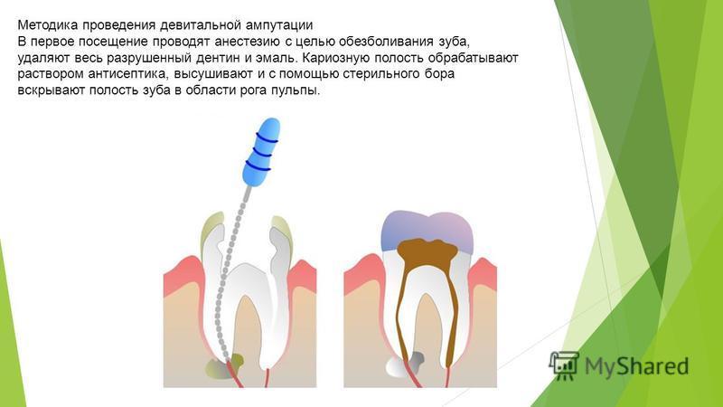 Методика проведения девитальной ампутации В первое посещение проводят анестезию с целью обезболивания зуба, удаляют весь разрушенный дентин и эмаль. Кариозную полость обрабатывают раствором антисептика, высушивают и с помощью стерильного бора вскрыва