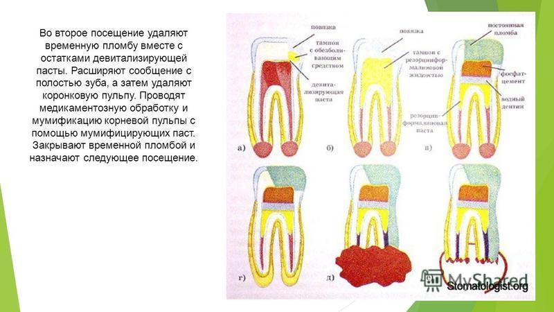 Во второе посещение удаляют временную пломбу вместе с остатками девитализирующей пасты. Расширяют сообщение с полостью зуба, а затем удаляют коронковую пульпу. Проводят медикаментозную обработку и мумификацию корневой пульпы с помощью мумифицирующих