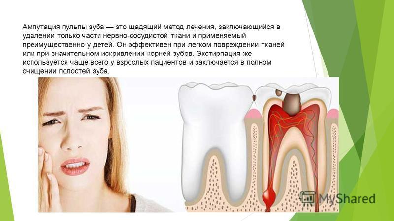 Ампутация пульпы зуба это щадящий метод лечения, заключающийся в удалении только части нервно-сосудистой ткани и применяемый преимущественно у детей. Он эффективен при легком повреждении тканей или при значительном искривлении корней зубов. Экстирпац