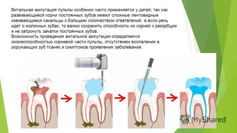 Витальная ампутация пульпы особенно часто применяется у детей, так как развивающиеся корни постоянных зубов имеют сложные лентовидные извивающиеся канальцы с большим количеством ответвлений, а если речь идет о молочных зубах, то важно сохранить спосо